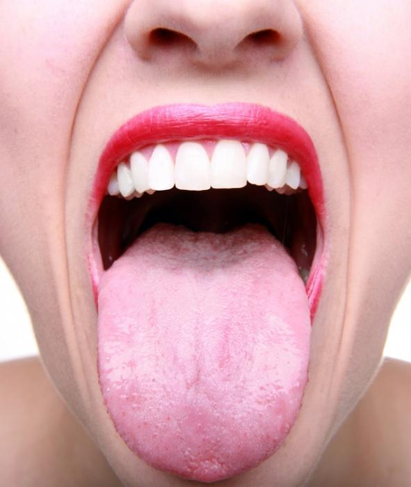 white coating on the tongue of an adult