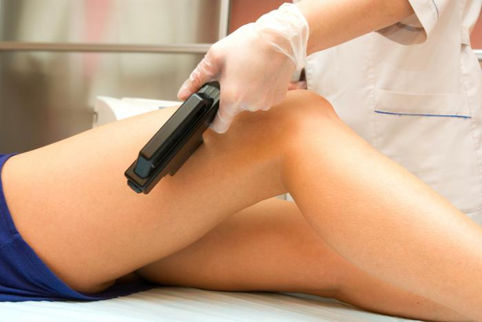 How are varicose veins treated: folk and medical methods